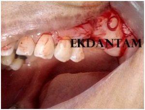 Sinus lift in upper posterior implants, Dental clinic in Jaipur