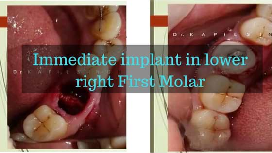 Immediate implant in lower right First Molar