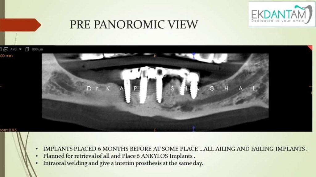 Pre Panoromic View