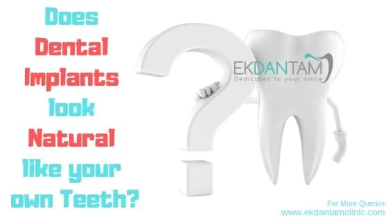 Does Dental Implants look Natural like your own Teeth