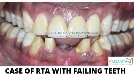 CASE OF RTA WITH FAILING TEETH