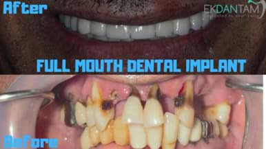 CASE-OF-FULL-MOUTH-DENTAL-IMPLANT
