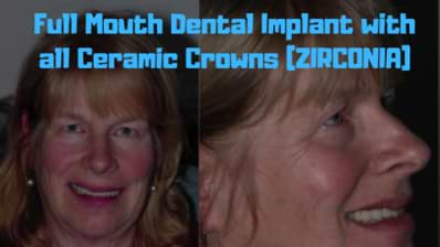 Full-Mouth-Dental-Implant-with-all-Ceramic-Crowns-ZIRCONIA-2-1