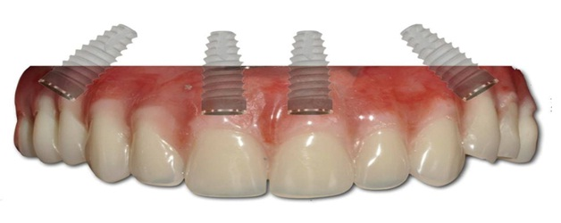 All on 4 full Mouth implant, Full dental implant in jaipur, best dental implants in india,