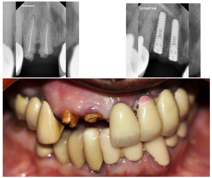 Multiple Tooth implant, Dental Implant in jaipur, Full Dental implant in jaipur, Best Dentist in jaipur