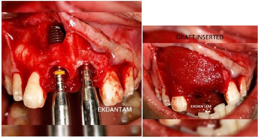 Implants in Anterior Aesthetic Area, Best Dental implant in Jaipur, Dental Clinic in jaipur, Dentist in jaipur