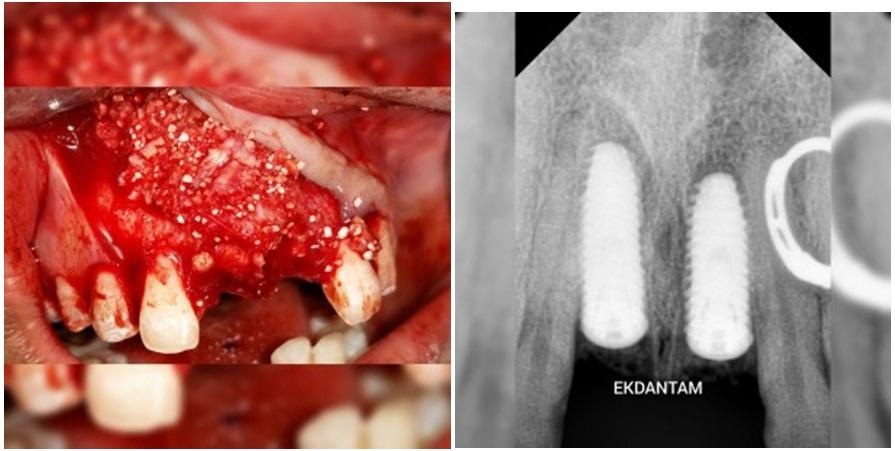 Implants in Anterior Aesthetic Area, Dentist in jaipur, Best Dental implant in jaipur, Dentist in india