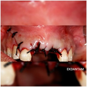 Implants in Anterior Aesthetic Area, Dental clinic in Jaipur, Best Dental implant in Jaipur, Dentist in india