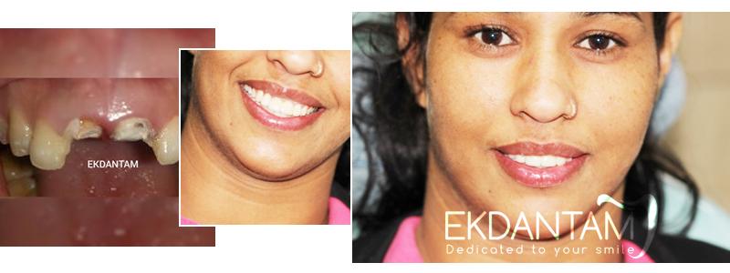 What are dental Implants, Dental Clinic in Jaipur, Dental Implant in Jaipur