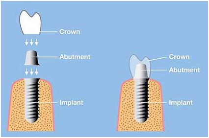 What are dental Implants, Dental implant in Jaipur, Best Dental clinic in Jaipur
