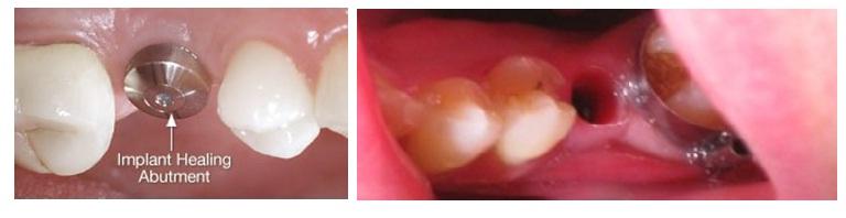 What is the procedure of Dental Implants, Best Dentist In Jaipur, Best Dental clinic in Jaipur