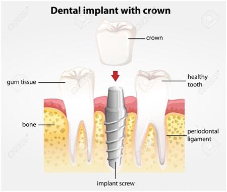 Best dental implants, dental implants jaipur, dental implant in india, full mouth dental implants, cost of full dental implants in india
