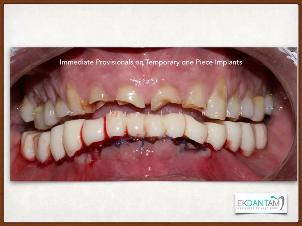 best Dental Implant in Jaipur
