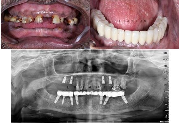 best dental implant clinic in jaipur