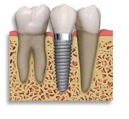 best dentist in jaipur