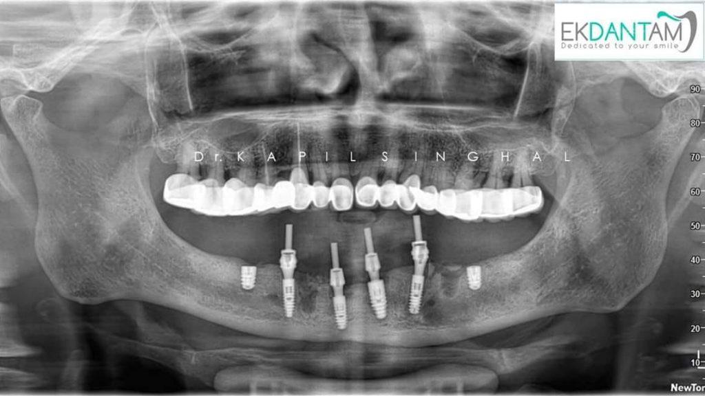 Surgery X-ray 1