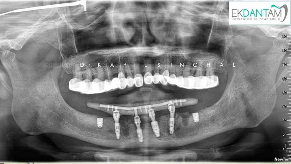 Surgery X-ray 2