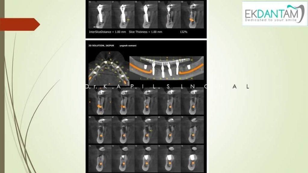 Surgery X-ray 4