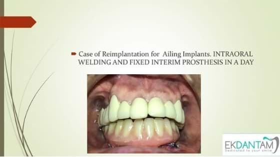 Reimplantation For Ailing Implants