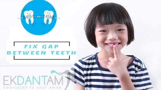 Gap between teeth