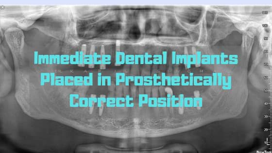 Immediate Dental Implants Placed in Prosthetically Correct Position