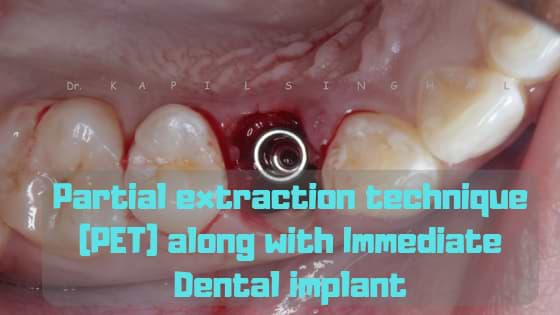 Partial extraction technique (PET) along with Immediate Dental implant