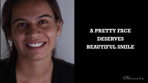 A Pretty Face Deserve Beautiful Smile